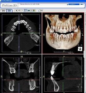 Cone Beam 3D Digtial Scanner